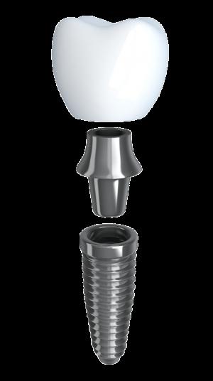 implant-model-300x536